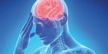 Síntomas menores asociados al ICTUS