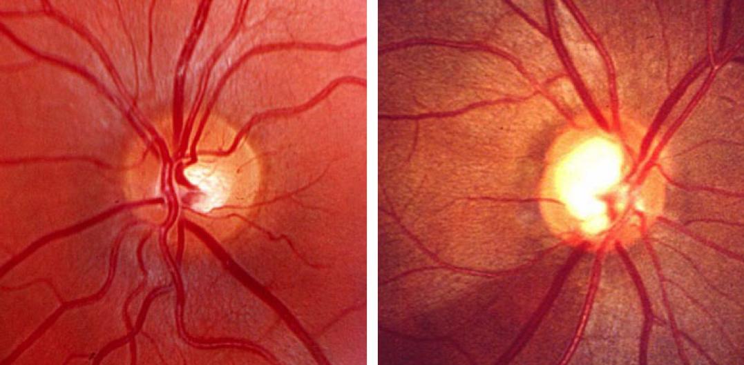Glaucoma, ¿qué es?