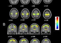 ¿Qué ocurre en el cerebro de los pacientes con hernias cervicales?